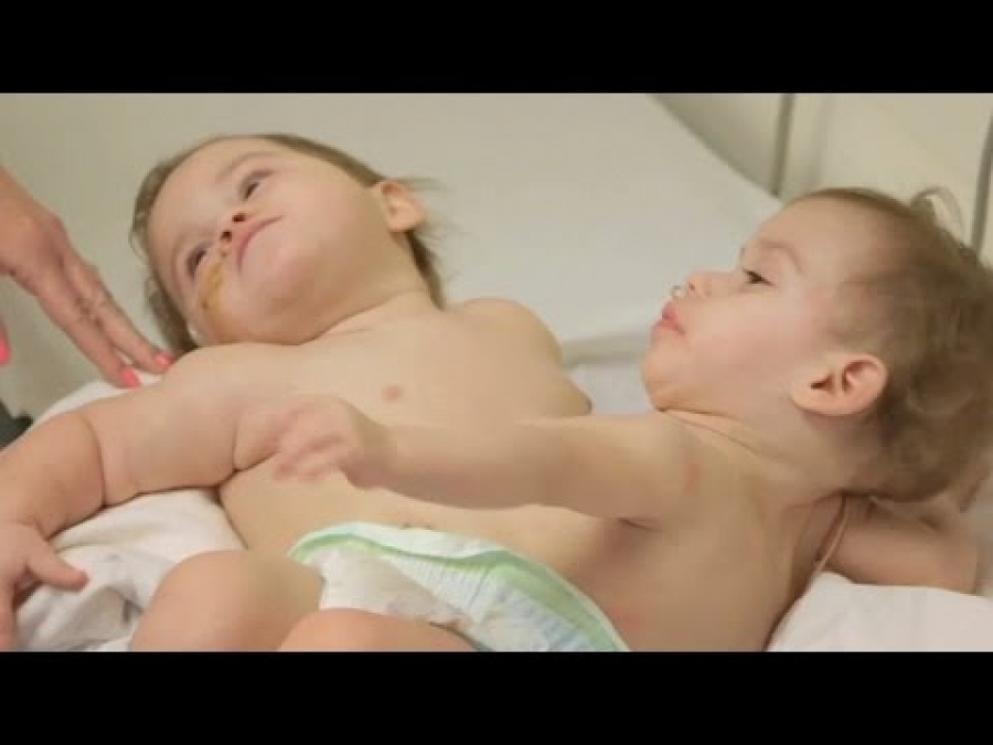 Two-year-old conjoined twins separated by surgeons in California