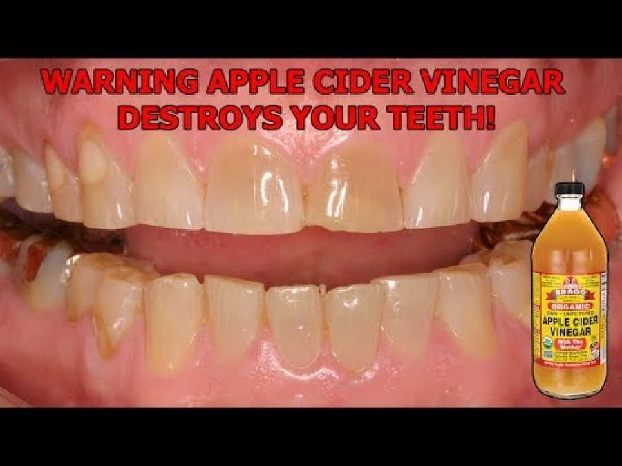 WARNING: APPLE CIDER VINEGAR DESTROYS YOUR TEETH! - BRAGGS